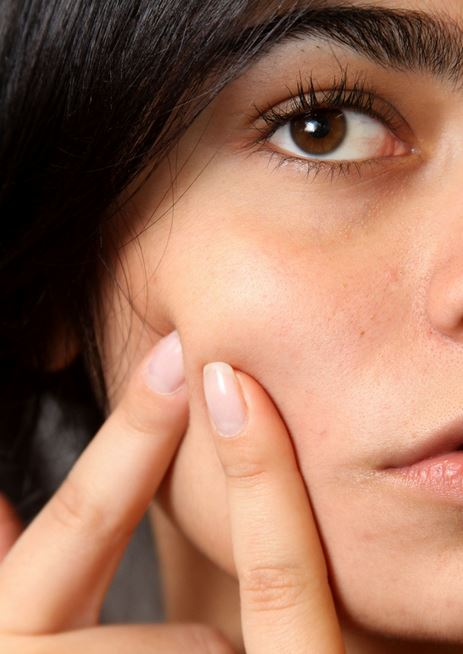 Is Acne due to Sugar, Dairy Products, and Bad Fats?