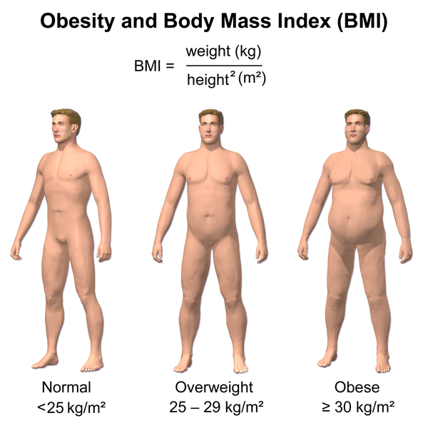 Unraveling Obesity? All Roads Lead to the Brain!
